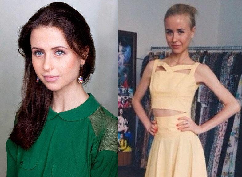 Затянув пояса: пять российских актрис, которые стремятся к безупречной худобе
