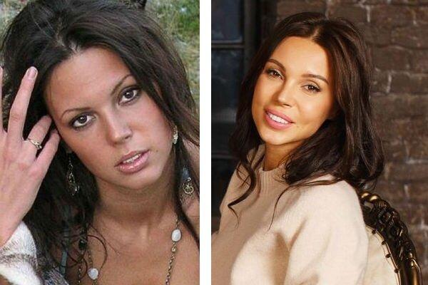 Российские звезды до и после пластических операций. Так было лучше?