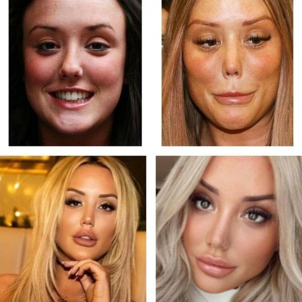 Жертвы пластических операций. Красота требует жертв?